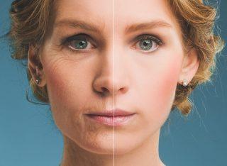 Dermatología estética láser