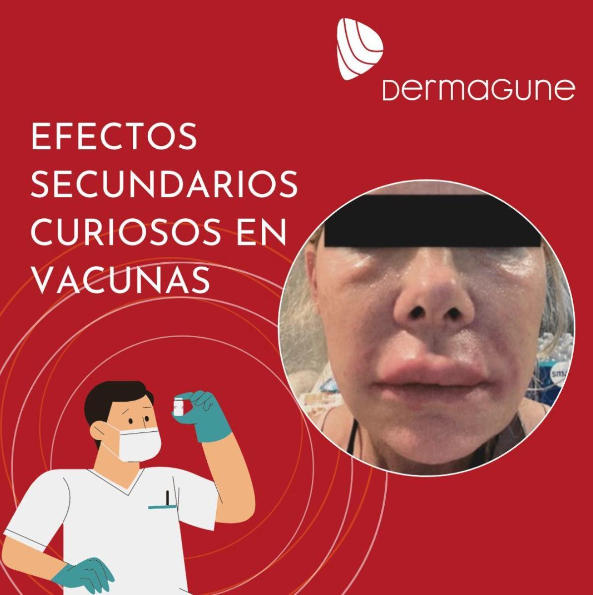 efectos-secundarios-curiosos-en-vacunas.png