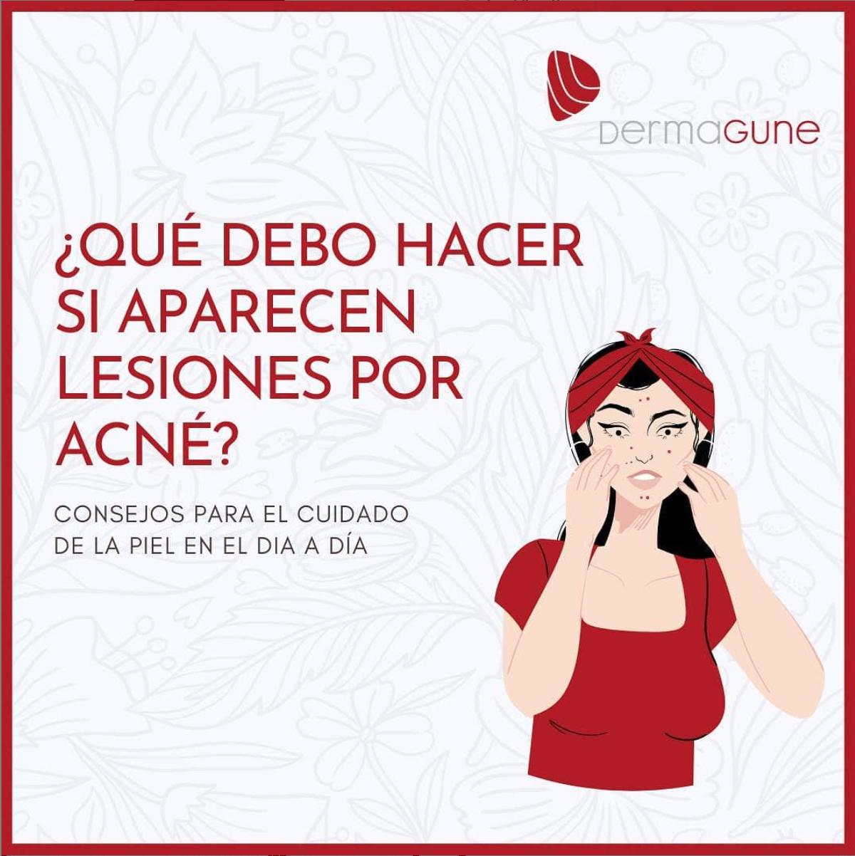 lesiones-acne.png